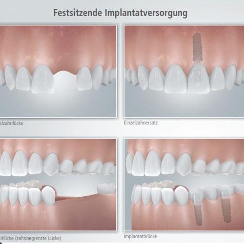 Beratungsblaetter-Zahnimplantate